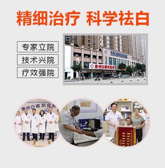 白癜风医院及治疗白癜风独家优势